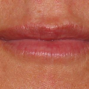 Dermal Fillers in Lips