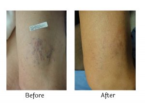 The Secret to Removing Spider Veins