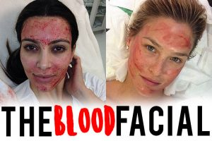 Everything You Would Ever Need to Know About Blood Facials