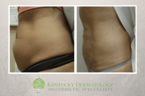Choosing Laser Fat Reduction or Liposuction