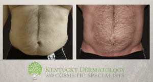 Choosing Laser Fat Reduction Treatment or Liposuction in Lexington, Kentucky (KY)